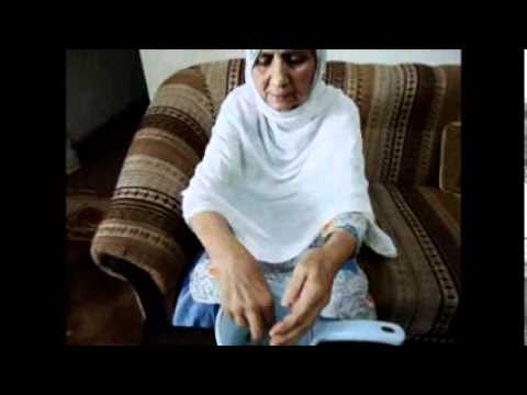 Moringa cures skin allergy and white skin.wmv